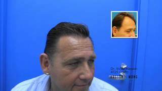 Hair Transplant Before and After 4725 Grafts - Hasson and Wong
