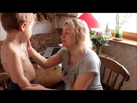 Заболел ребенок ветрянкой а мама не болела