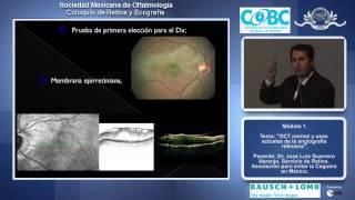 OCT normal y usos actuales de la angiografía retiniana - Dr. José Luis Guerrero Naranjo