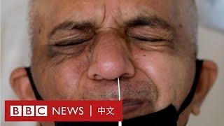 肺炎疫情:印度呼吸機不足 醫生用上了這個方法- BBC News 中文