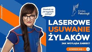 Laserowe usuwanie żylaków - jak wygląda zabieg?