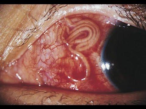 черви паразиты симптомы
