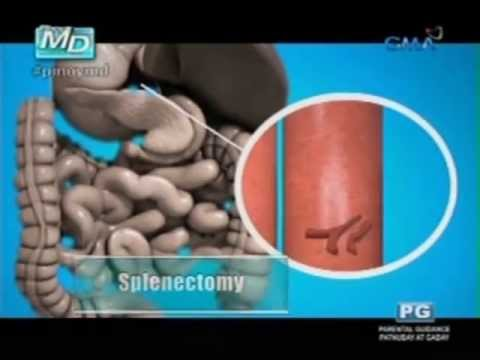 Ano ang sakit na schistosomiasis? (Pinoy MD) from YouTube · Duration:  4 minutes 57 seconds