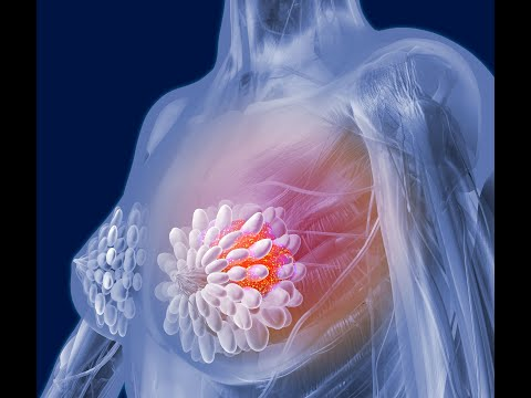 Thousands of breast cancer patients could be spared chemo