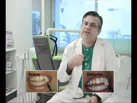 Tratamientos de blanqueamiento dental en la cl nica dental - Clinica dental gandia ...