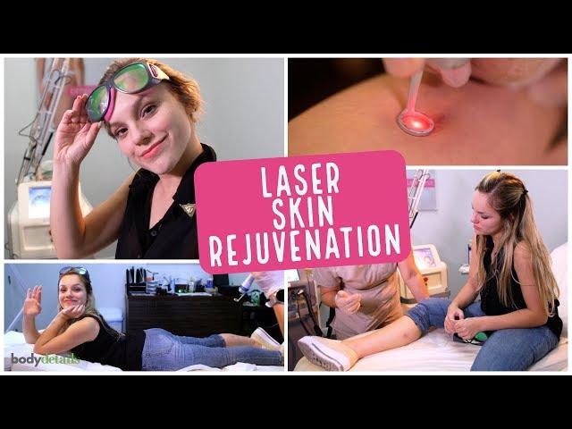 Laser Scar Removal Miami | Leticia Navas | Body Details