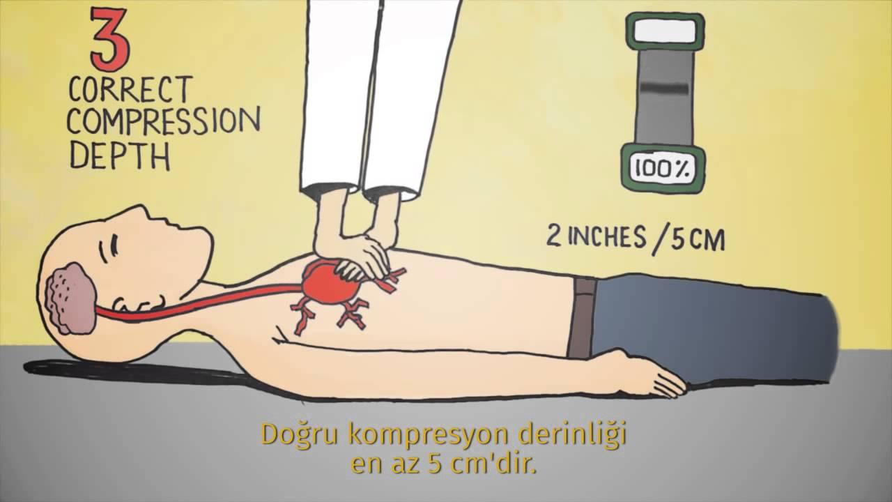 Kaliteli CPR yapıyor musunuz?
