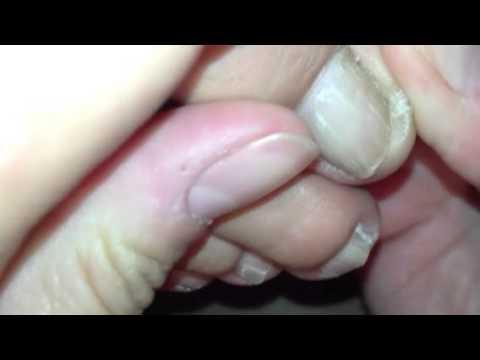 entretenir ses ongles de pieds