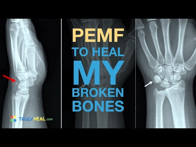 PEMF to Heal My Broken Bone