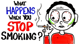 What Happens When You Stop Smoking? thumbnail