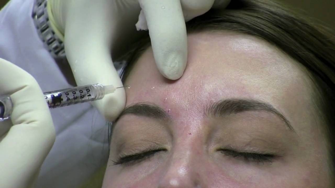 Botox Injection Technique for Wrinkle Reduction in Virginia