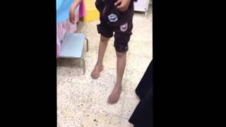 equinovarus deformity of Rt foot in 12 with cerebral palsy