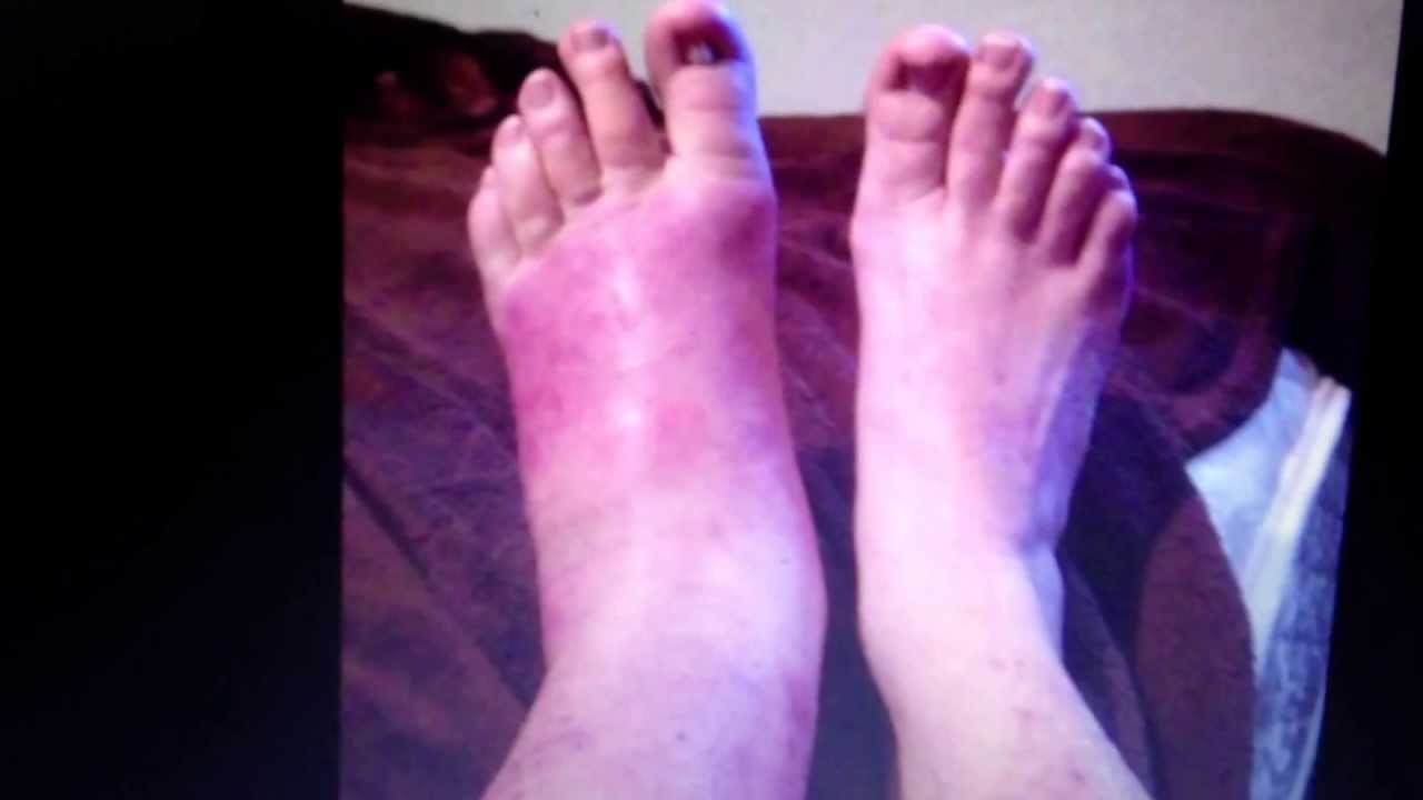 Cellulitis on the feet: how to get rid 83