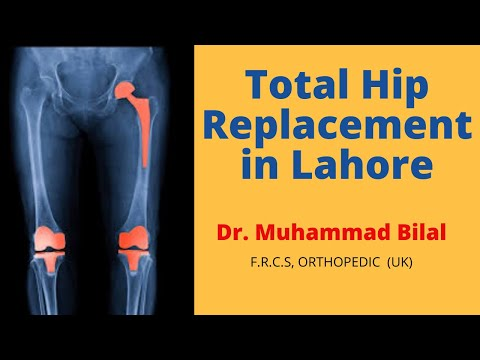 Best Total Hip Replacement in Lahore Pakistan, Dr. Muhammad Bilal Senior Joint Replacement Surgeon.