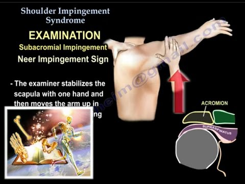 Shoulder Impingement Syndrome  - Everything You Need To Know - Dr. Nabil Ebraheim