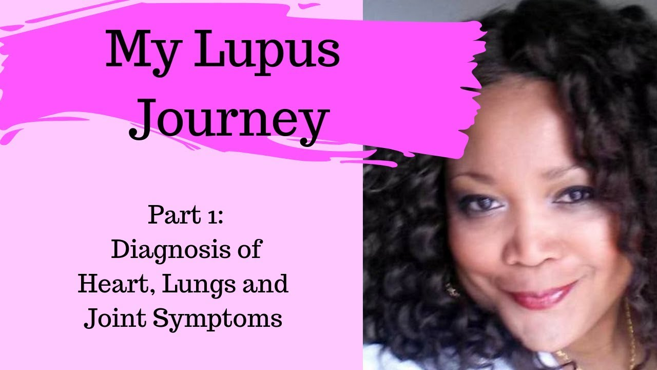 MY LUPUS STORY! Part 1: How my Lupus was Diagnosed