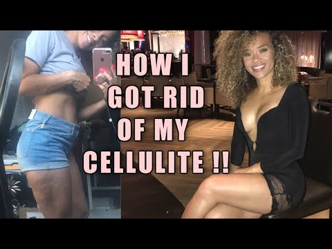 How to Get Rid of Cellulite | Updated | Proof!