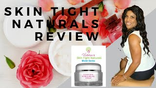 Review: Clear Skin Scar and Bruise Cream by Victoria's Skin Tight Naturals