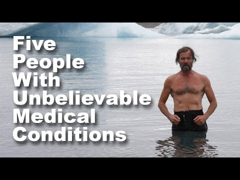 Five People with Unbelievable Medical Conditions