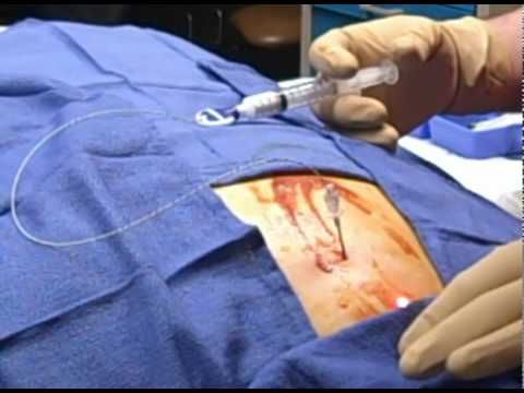 Catheter-Assisted Cervical ESI