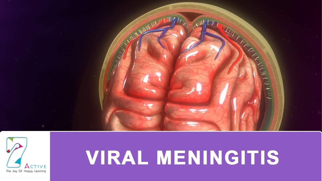 viral meningitis - youtube, Human Body