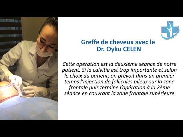 Greffe de cheveux Turquie - Dr.Oyku CELEN - Skin Health Turkey