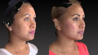 Rhinoplasty 3D Before and After 10