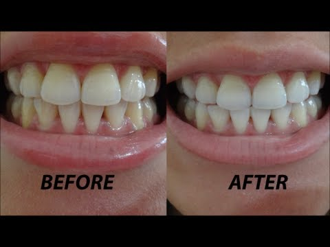Crest 3d Whitestrips Vivid Before After Demo Review Youtube