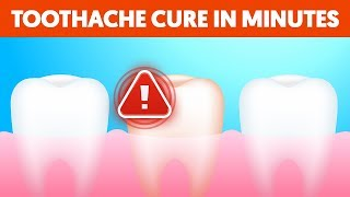 5 Ways to Stop a Toothache in MINUTES! (Using natural home remedies)