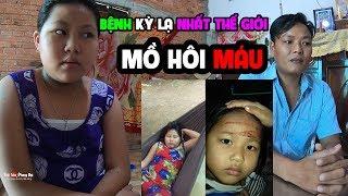 KỲ LẠ bé gái đổ MỒ HÔI M.Á.U, gia đình sống trên nhiều nấm m.ộ   PHONG BỤI