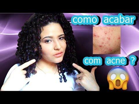 """segundo proibir e erradicar com"""" acne ou espinhas"""" ?"""