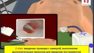 Лапароскопическая холецистэктомия: этапы и техника эндоскопического удаления желчного пузыря