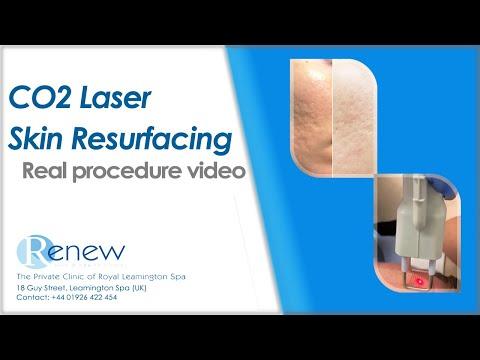 Laser Skin Resurfacing by Dr Nisha Jha