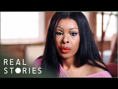Acid Attack: Naomi's Tragic Story (Crime Documentary)   Real Stories