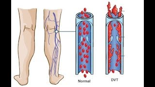 Y circulación de sangre sal