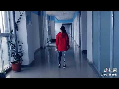 Chinese one leg RAK amputee lady walking through the corridor with her prosthetic leg