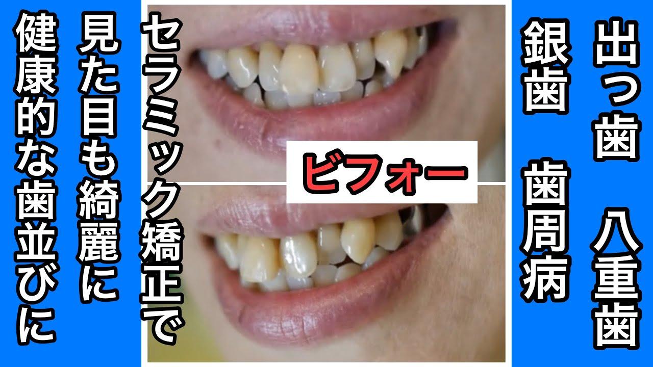 歯周病で歯に隙間 歯茎やせ 八重...