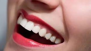 видео Укрепление зубов и десен народными средствами