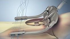 hqdefault - Achilles Tendon Problems And Diabetes
