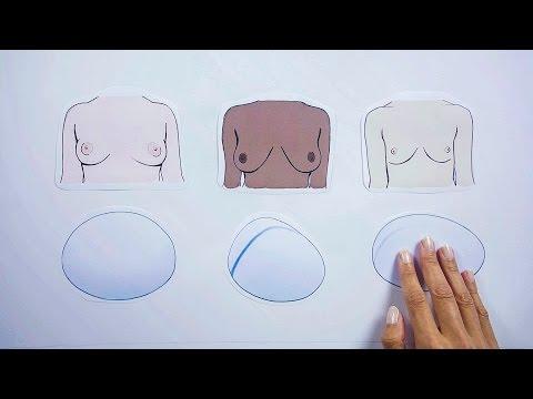 Klinik Am Opernplatz – Welche Brustimplantate gibt es?
