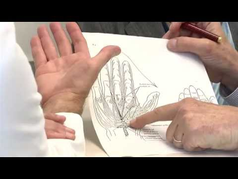 How it works: Carpal tunnel syndrome surgery