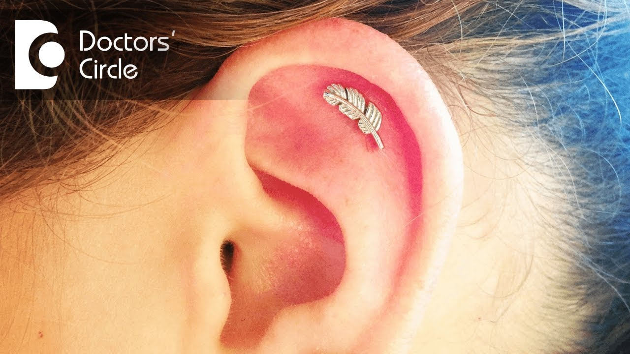 How To Manage An Infected Cartilage Of Helix Post Ear Piercing Dr