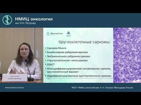 Трудные вопросы морфологической диагностики сарком мягких тканей