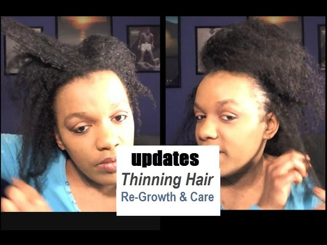 My Natural Hair Is Growing Back After The Thinning Tips