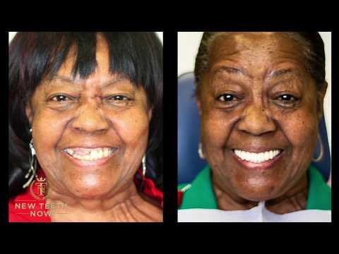 smile-just-like-brenda-with-dental-implants---new-teeth-now