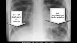 Chest x-ray , pneumonia