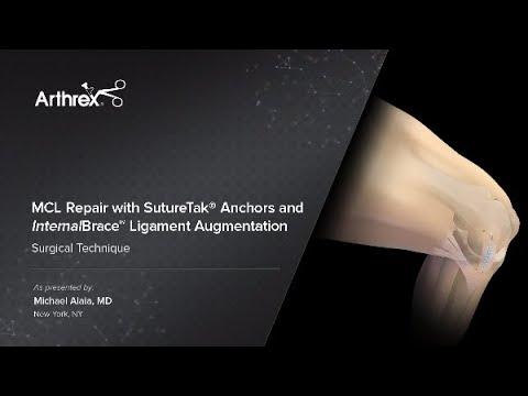 MCL Repair With SutureTak® Anchors And InternalBrace™ Ligament Augmentation
