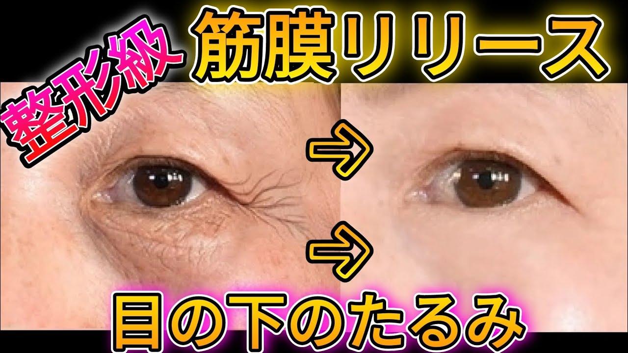 【目の下のたるみをとる】タルミを取る筋膜リリースを伝授!整形級に目の下のたるみを消す!みで目を大きくぱっちり!タルミ治す!1週間で激変!