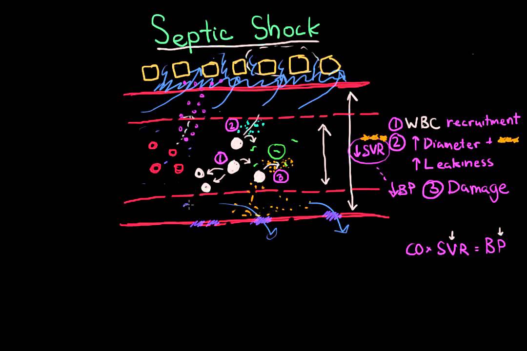septic shock: pathophysiology and symptoms - youtube, Skeleton
