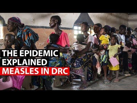MEASLES | Understanding The Outbreak In DRC